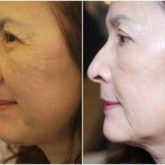 「先進」究極的返老還童回春術,波痞媽的CPT電波拉皮除皺緊緻初體驗(術後一個月成果更新)